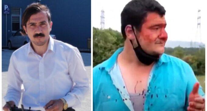 Ataques a jornalistas na Turquia são muito comuns, as autoridades devem levar esses casos a sério